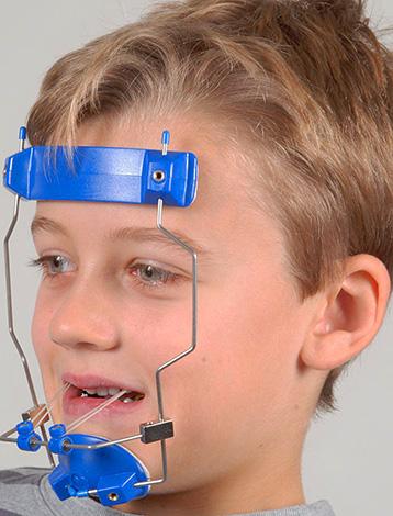 Ношение такого внеротового аппарата позволяет выдвинуть верхнюю челюсть ребенка вперед.