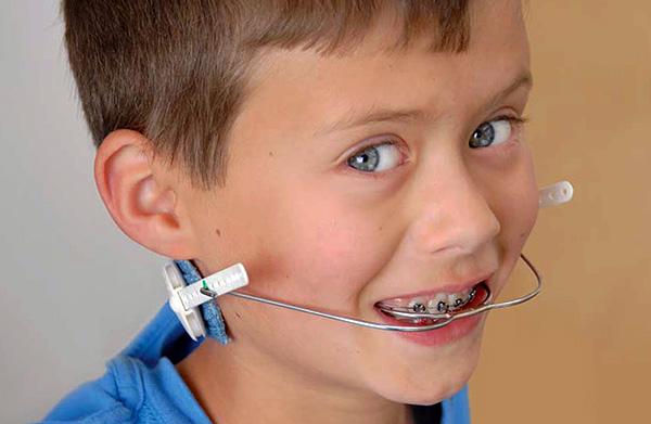 Лицевая дуга позволяет, например, задать наклон передних зубов внутрь полости рта.