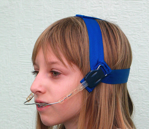 Лицевая дуга является очень простым, но весьма эффективным аппаратом для коррекции прикуса.
