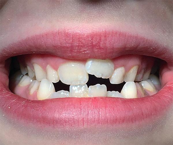 Различные виды съемных ортодонтических аппаратов позволяют эффективно выравнивать прикус у малышей даже в очень сложных клинических случаях...