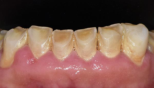 Неправильная окклюзия привела в патологическому стиранию нижних резцов и клыков.