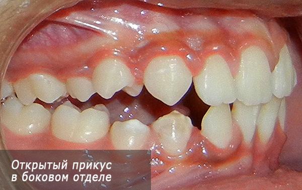 Открытый прикус в боковом отделе зубных рядов.
