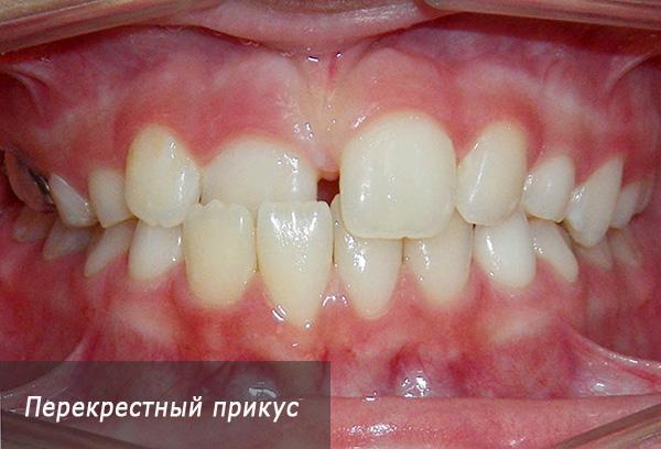 Перекрестный прикус постоянных зубов.