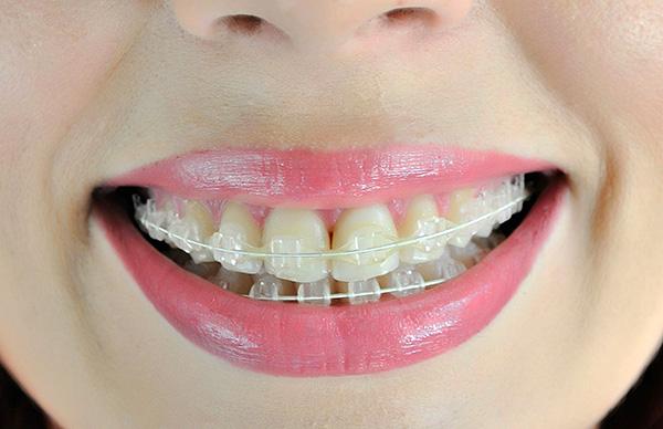Сапфировые брекеты, по сравнению с металлическими, относительно малозаметны на зубах.