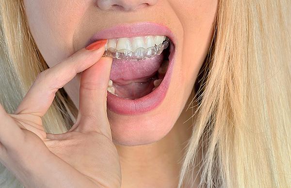 Так выглядит ортодонтическая капа для выравнивания прикуса постоянных зубов.