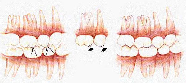 Схема устранения блокирующих зубных контактов.