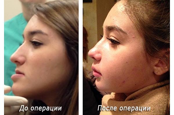 Результат ортогнатической хирургии: слева - до операции, справа - после.