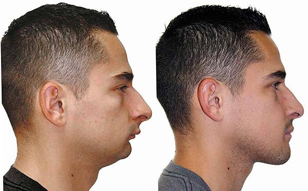 В ходе операции удается исправить не только прикус, но и внешний вид всего лица.
