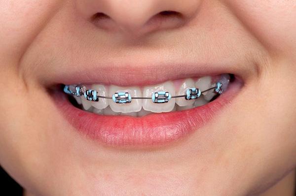 Результат коррекции прикуса во многом зависит от того, насколько правильно врач-ортодонт составит план предстоящего лечения.