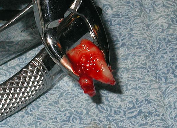 Зачастую при ортодонтическом лечении приходится удалять восьмерки.