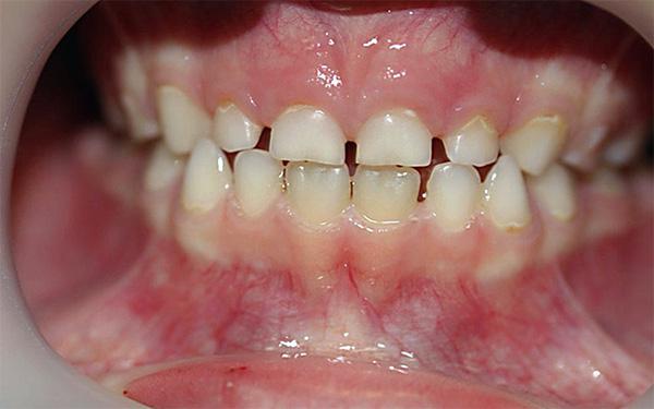 На определенном этапе молочные зубы могут подвергаться значительному физиологическому стиранию.