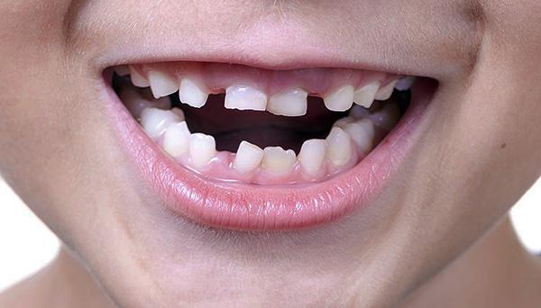 В период смены молочных зубов на постоянные прикус малыша может быть далек от идеала.