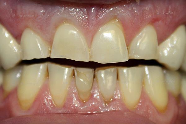 Неправильный прикус зачастую ведет к сильному стиранию отдельных зубов.