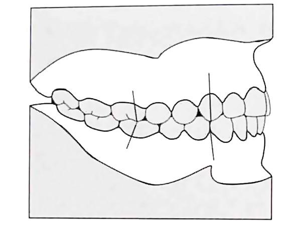 Смыкание зубных рядов по I классу Энгля