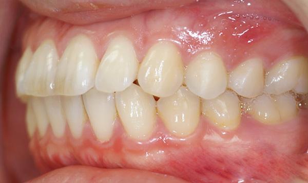 При бипрогнатическом прикусе верхние и нижние передние зубы сильно наклонены вперед.