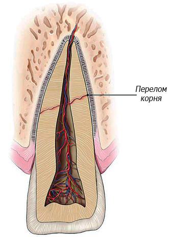 Перелом корня зуба является абсолютным показанием к его удалению.