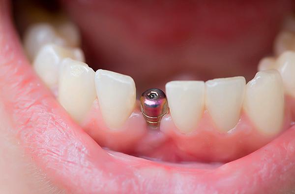 Изучаем, что входит в установку импланта зуба под ключ, а за что придется доплатить отдельно...