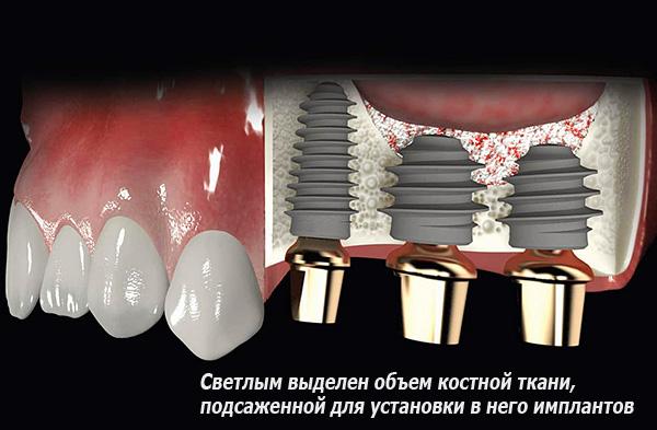 Синус-лифтинг позволяет восстановить достаточный объем костной ткани для последующей установки в нее имплантов.