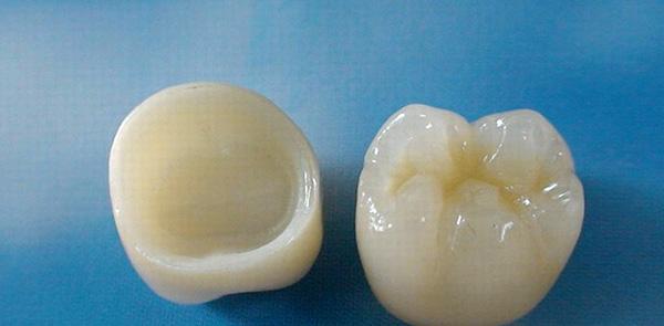 Коронки из диоксида циркония на жевательные зубы.