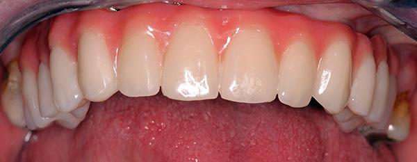 Полный протез верхней челюсти, установленный на 4 имплантах.