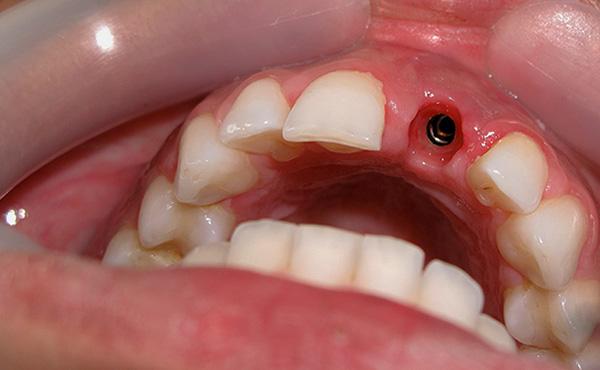 Указываемая для имплантации зуба под ключ цена является минимальной, но по факту может значительно возрасти.