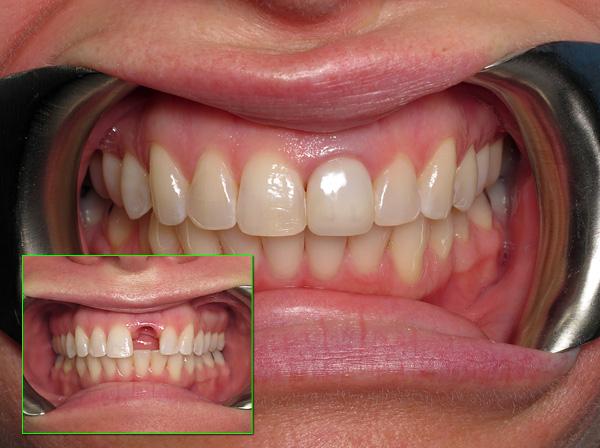 Протезирование переднего зуба на имланте