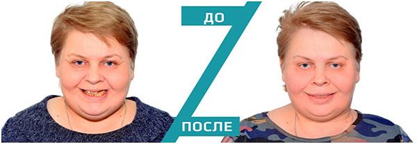 На фотографии показана улыбка до и после протезирования зубов.