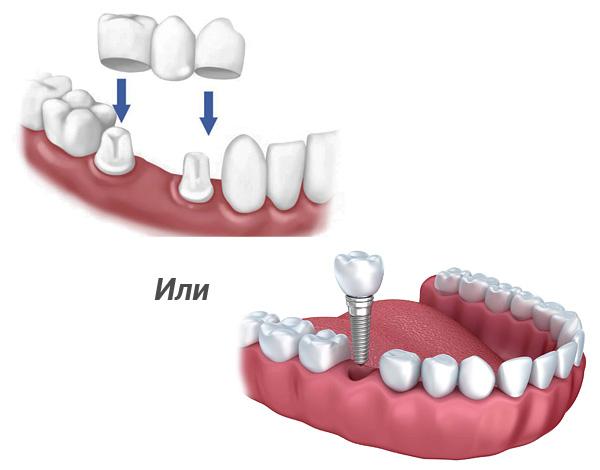 Разберемся, что все-таки лучше - проверенный временем зубной мост или современное протезирование на зубных имплантах...