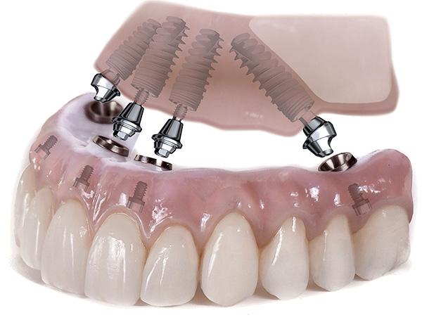 Пример протезирования всех зубов верхней челюсти на имплантах по технологии All-on-4.