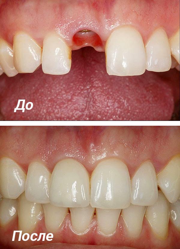 Протезирование зубов на имплантах позволяет добиться максимально высокой эстетики конечного результата.