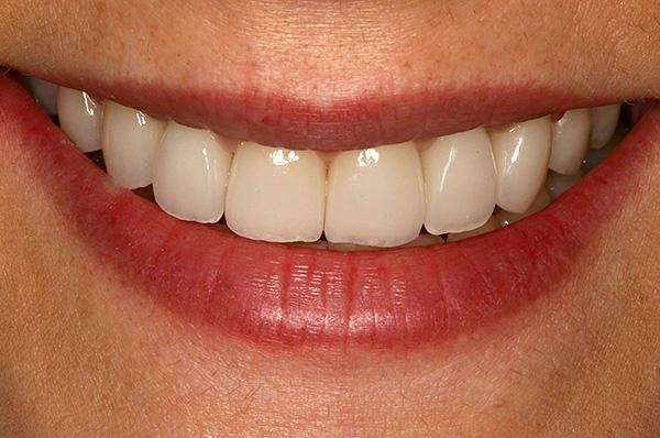 В подавляющем большинстве случаев использование зубных имплантов имеет гораздо больше плюсов, чем установка моста.