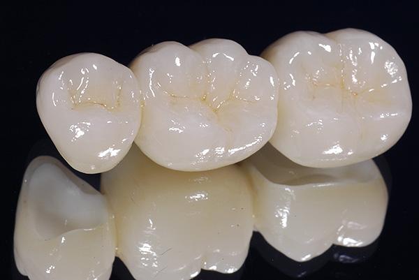 Зубной мост из диоксида циркония