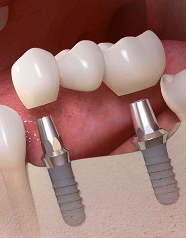 Мост может быть установлен и на дентальных имплантах...