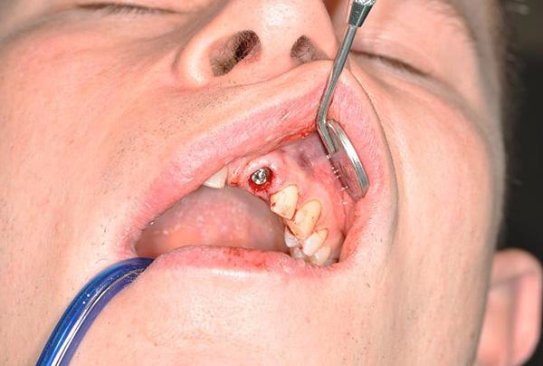 В норме установленный имплант может прослужить несколько десятилетий.