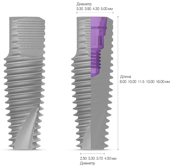 Форма имплантов МИС является анатомической, что позволяет равномерно передавать жевательную нагрузку на кость.