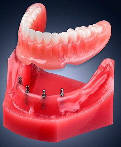 Съемный протез имеет специальные углубления, в которые входят шаровидные абатменты.